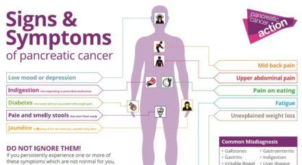Symptoms of Pancreatic Cancer | CureMantra